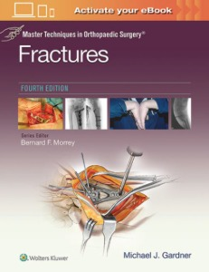 Master Techniques in Orthopaedic Surgery: Fractures, 4ED
