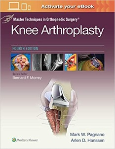 Master Techniques in Orthopaedic Surgery: Knee Arthroplasty, 4ED