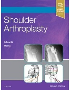 Shoulder Arthroplasty, 2ED